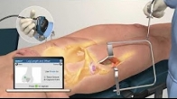 Intellijoint HIP Anterior by Intellijoint Surgical Inc