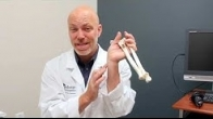 What to expect after distal radius/wrist fractures