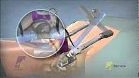 Transforaminal Lumbar Interbody Fusion (TLIF)