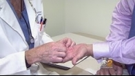 Treatment Options For Dupuytren's Disease