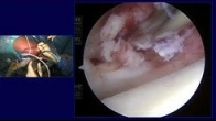 Live Surgical Demonstration of Lateral Meniscus & Osteochondral Allograft Transplantation