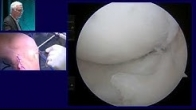 Meniscus Allograft Transplant and Osteochondral Autograft Transplant from 2017 Chicago Sports Medici
