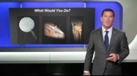 MPFL with AMZ and Cartiform Viable Osteochondral Allograft | Brian J. Cole, MD, MBA
