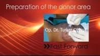 FUE Hair Transplantation - Preparation of donor area