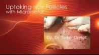 Extraction of Hair Follicles