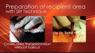 Preparation of the recipient area for hair transplantation