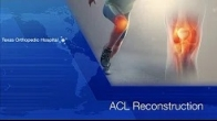 ACL Reconstruction by Dr Gombera