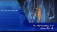 Hip Arthroscopy and Labrum Repair - Dr Gombera