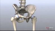 Hip Anatomy Animated Tutorial