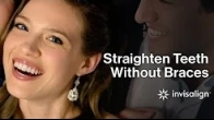 Straighten Teeth Without Braces | Clear Teeth Aligners | Invisalign