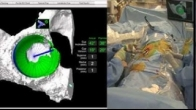 DASH Live 3 - Robotically Guided Primary Hip Replacement