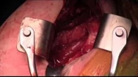 Closed Reduction and Subscapularis Transfer for Locked Posterior Shoulder Dislocation
