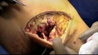 Posterolateral Corner Repair Following a Multiligamentous Knee Injury