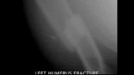 A Dog Humerus Fracture?!!