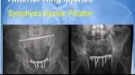 Open Reduction and Fixation of Pelvic Ring Injuries