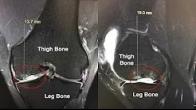 Cartilage Transplant - David Saper MD
