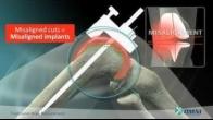 OMNIBotics Patient Informational
