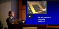 Scott Wolfe: Normal and Abnormal Carpal Kinematics: The Importance of the Midcarpal Joint