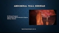 Abdominal Wall Hernias Explained with Dr Michael Crawford
