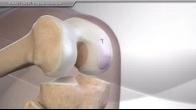 BioUni® OATS® Surgical Technique
