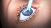 Features of SCHWIND AMARIS Excimer Laser for refractive surgery laser treatments
