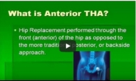 Anterior Total Hip Replacement- Minimally Invasive Hip Replacement