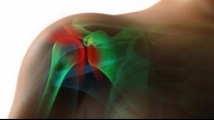 Shoulder replacement surgery relieves pain, improves function
