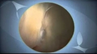 Hip Arthroscopy: Status Post-Acetabular Fracture.mov
