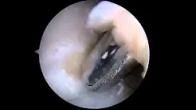 Right Elbow Arthroscopy - Michael Shepard MD
