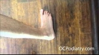 Achilles tendinitis or tendinosis conservative and surgical treatment options
