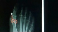 What is a Bunion? Podiatrist in Irvine California - Dr. Kolodenker Surgeon in Orange County