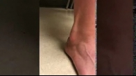 Dislocating Peroneal Tendons