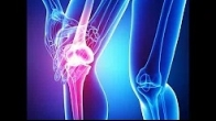 Stem Cell Treatment For Your Knee (ACL, MCL, LCL) in New York