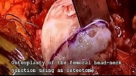 LCPD Open Osteoplasy - Hip Preservation Surgery