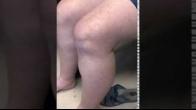 Dr. Eggers's patient testimonial knee 10