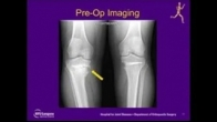 Revision Medial Opening Wedge High Tibial Osteotomy