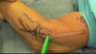 Lateral Ulnar Collateral Ligament Reconstruction for Posterolateral Rotatory Instability
