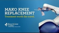 Full Knee Replacment | Mako Robotic Arm Assisted Surgery Technology