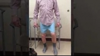 3 week postop Dr Lige Kaplan Minimally Invasive Hip Replacemnt