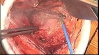 Minimally Invasive Surgery - Hip Replacement
