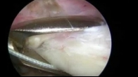 Arthroscopic Cuff Repair with Biceps Tenodesis