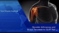 Shoulder Arthroscopy and Biceps Tenodesis by Dr. Gombera