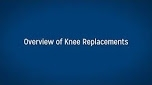 Overview of Knee Replacements