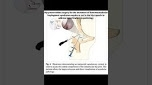 Contemporary Management of the Hip Capsule During Hip Arthroscopy