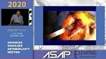 Re-Live Surgery - Reverse Shoulder Arthroplasty with Custom Glenoid Implant