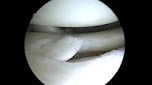 Lateral Meniscus Tear