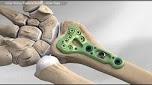Distal Radius Fracture Repair - Volar Plate