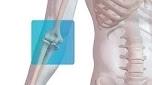 Distal Biceps Repair with Arthrex Tension Slide