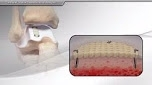 Cartiform® Viable Osteochondral Allograft