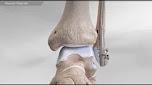 FibuLock Fibular Nail